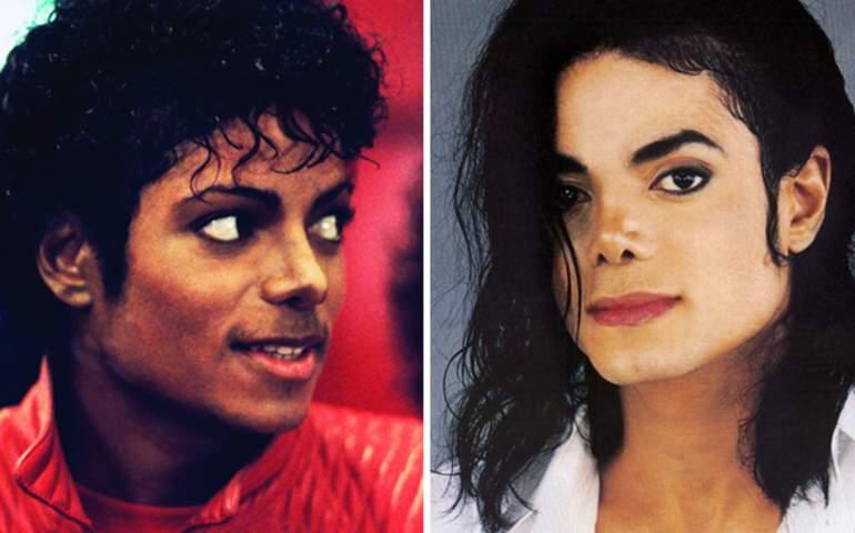Micheal Jackson Öncesi ve Sonrası